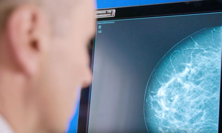 Photo of Artificial intelligence set to assist breast screening in Ireland